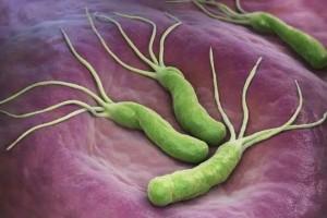 关于幽门螺杆菌的最全科普一文解决所有疑问